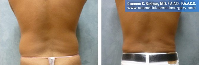 Liposuction - Before and After Treatment Photos, back view - female patient 8