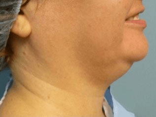 Liposculpture Liposuction - Before Treatment photo, right side view, female patient 7