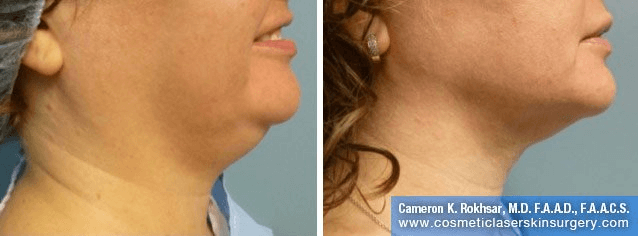 Liposculpture Liposuction - Before and After Treatment photo, right side view, female patient 7