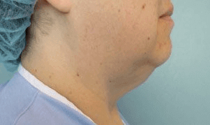 Liposculpture Liposuction - Before Treatment photos, right side view, female patient 11