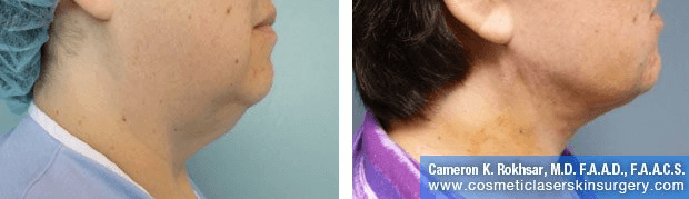 Liposculpture Liposuction - Before and After Treatment photos, right side view, female patient 11