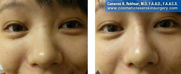 Young boy face, Before and After: Non Surgical Nosejob Treatment - front view, patient 1