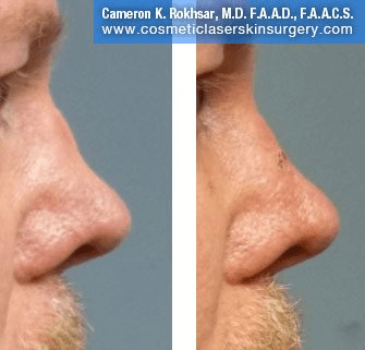Non Surgical Nosejob - Before and After treatment photo, male, right side view, patient 40