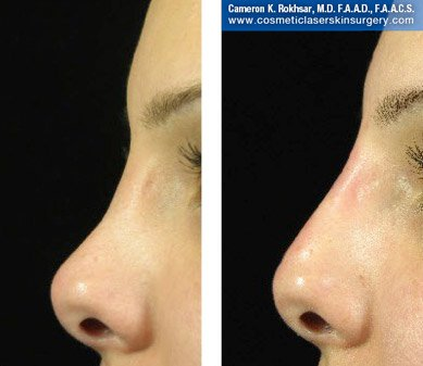 Fillers. Before and After Treatment photos - female, left side view, patient 11