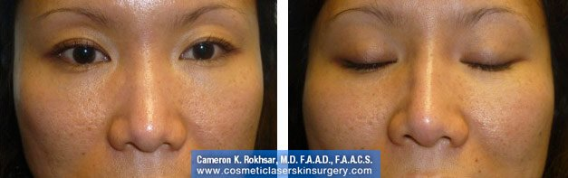 Non Surgical Nosejob - Before and After treatment photo, female, front view, patient 38