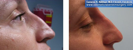 Non Surgical Nosejob - Before and After treatment photo, female, right side view, patient 37