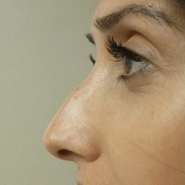 Non Surgical Nosejob - Beforetreatment photo, female, left side view, patient 36