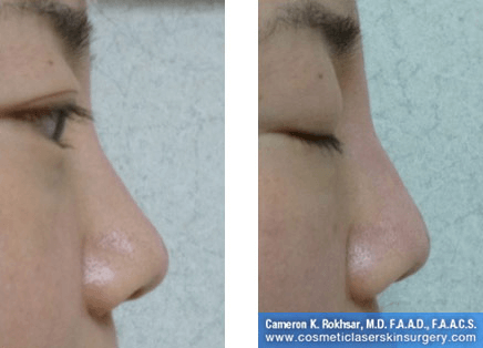 Non Surgical Nosejob - Before and After treatment photo,right side view, patient 20