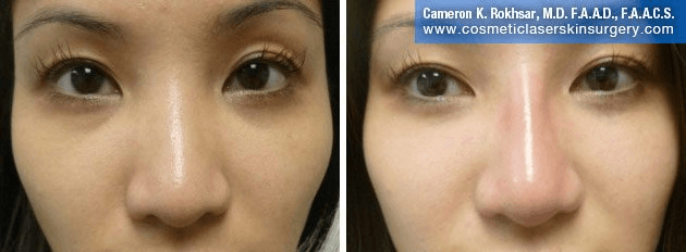 Non Surgical Nosejob - Before and After treatment photo, female, front view, patient 41