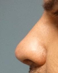 Non Surgical Nosejob - After treatment photo, male, left side view, patient 42