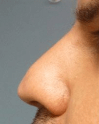 Non Surgical Nosejob - Before treatment photo, male, left side view, patient 42