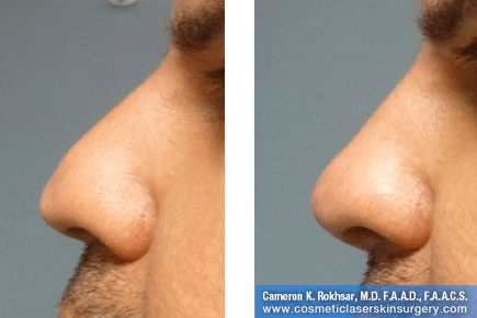Non Surgical Nosejob - Before and After treatment photo, male, left side view, patient 42