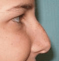 Non Surgical Nosejob - Before treatment photo, female, right side view, patient 32