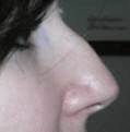 Non Surgical Nosejob - Before treatment photo, female, right side view, patient 30