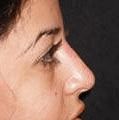 Non Surgical Nosejob - Before treatment photo, female, right side view, patient 28
