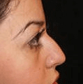 Non Surgical Nosejob - After treatment photo, female, right side view, patient 28