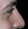 Non Surgical Nosejob - After treatment photo, male, right side view, patient 48