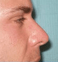 Non Surgical Nosejob - After treatment photo, male, right side view, patient 23