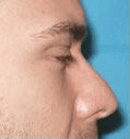 Non Surgical Nosejob - Before treatment photo, male, right side view, patient 23