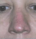 Non Surgical Nosejob - After treatment photo, male, front view, patient 22