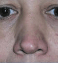Non Surgical Nosejob - Before treatment photo, male, front view, patient 22