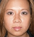 Non Surgical Nosejob - After treatment photo,left side view, female patient 22