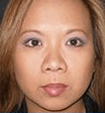 Non Surgical Nosejob - Before treatment photo,left side view, female patient 22