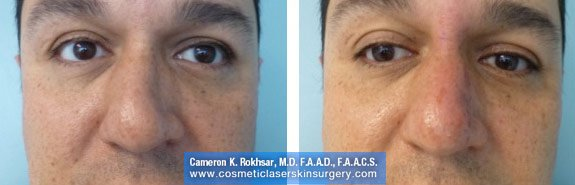 Non Surgical Nosejob - Before and After treatment photo, male, front view, patient