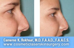 Non Surgical Nosejob - Before and After treatment photo, female, right side view, patient 32