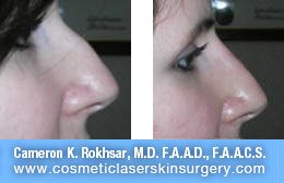 Non Surgical Nosejob - Before and After treatment photo, female, right side view, patient 30