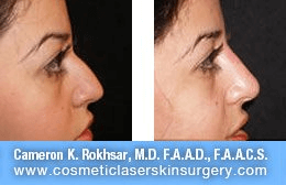 Non Surgical Nosejob - Before and After treatment photo, female, right side view, patient 28
