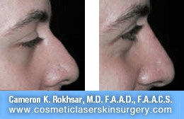 Non Surgical Nosejob - Before and After treatment photo, male, right side view, patient 48
