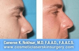 Non Surgical Nosejob - Before and After treatment photo, male, right side view, patient 23