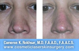 Non Surgical Nosejob - Before and After treatment photo, male, front view, patient 22