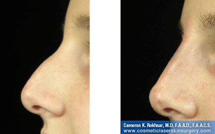 Fillers. Before and After Treatment photos - female, left side view, patient 12