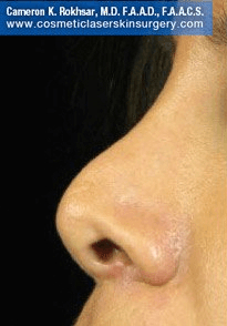 Fillers. Before Treatment photos -  left side view, patient 14