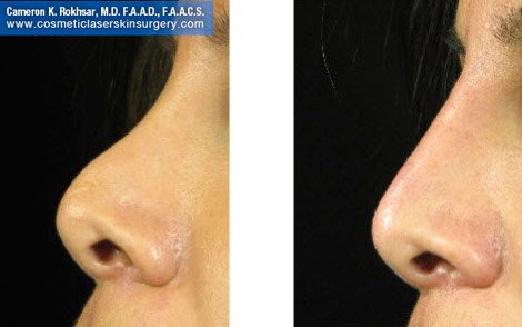 Fillers. Before and After Treatment photos -  left side view, patient 14
