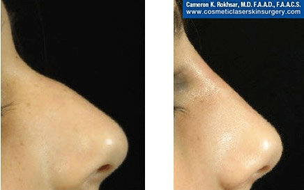 Fillers. Before and After Treatment photos - female, right side view, patient 15