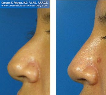 Fillers. Before and After Treatment photos - female, left side view, patient 17