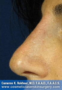 Fillers. After Treatment photos - left side view, patient 22
