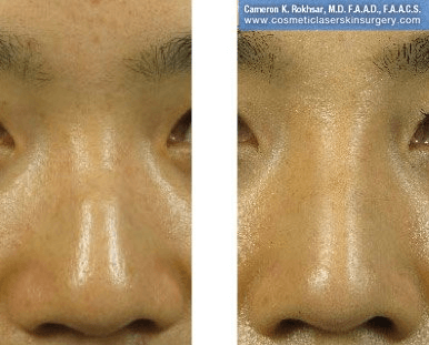 Fillers. Before and After Treatment photos - front view, patient 20