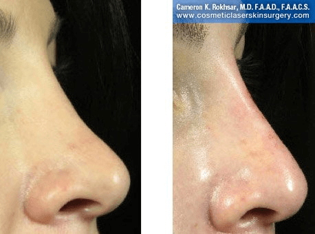 Fillers. Before and After Treatment photos - female, right side view, patient 24