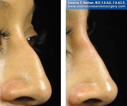 Fillers. Before and After Treatment photos - female, right side view, patient 26