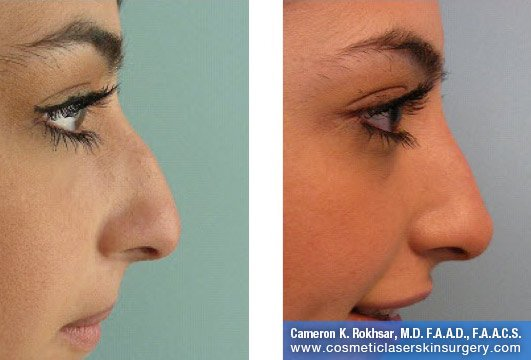 Fillers. Before and After Treatment photos - female, right side view, patient 27