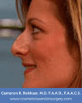 Non Surgical Nosejob - Before treatment photo, female,left side view, patient 45