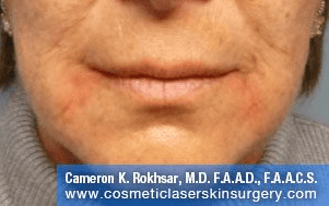 Fillers. After Treatment photos - front view, female patient 29