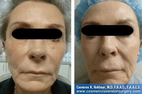 Fraxel - Before and After Treatment photo, female, front view - patient 28