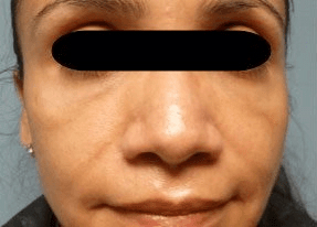 Fillers. Before Treatment photos - front view, female patient 30