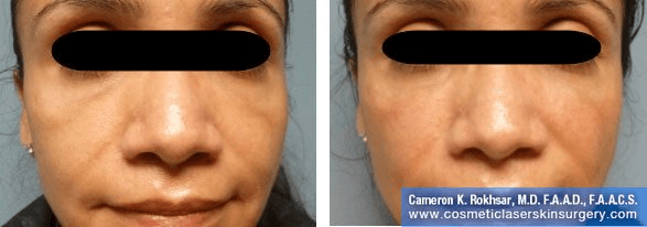 Fillers. Before and After Treatment photos - front view, female patient 30