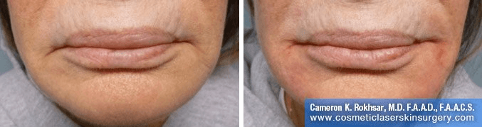 Fillers. Before and After Treatment photos - female, front view, patient 4